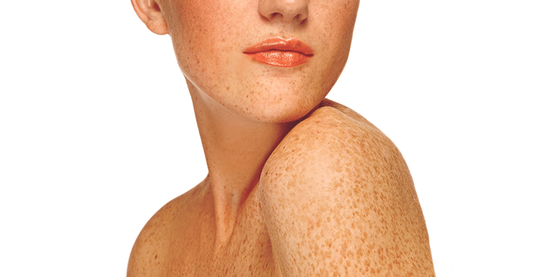 May is Melanoma Awareness Month! Are You at Risk? Cleveland, Ohio | The Laser & Skin Surgery Center
